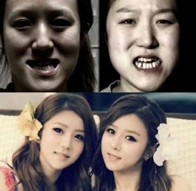 korean-twins-plastic-surgery