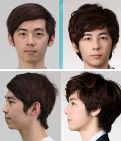 plastic-surgery-04