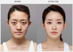 plastic-surgery-19